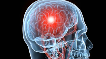Modern Technology To Join Forces With Brain Surgery